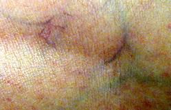 Capillaro o teleangectasie | Nonsolovarici.it